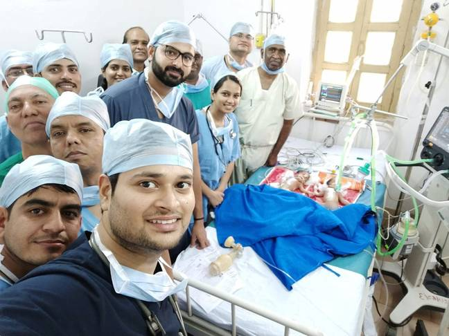 Doctors selfie conjoined twins operation