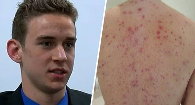 Teen sues after being banned from school because he didn't have chickenpox vaccination