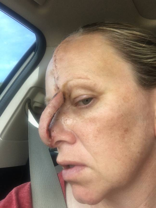 Tanning Addict Left With Hole In Nose After Developing Skin Cancer