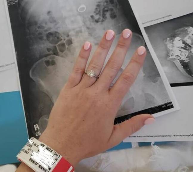 Engagement Ring Swallow