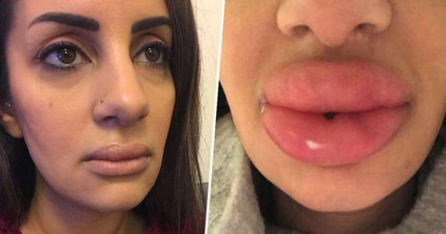 Woman's Lips Swell Into 'Huge Blue Lumps' As Filler Injections Go Wrong