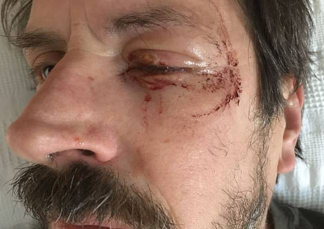 Man left blind in one eye after firework exploded in it