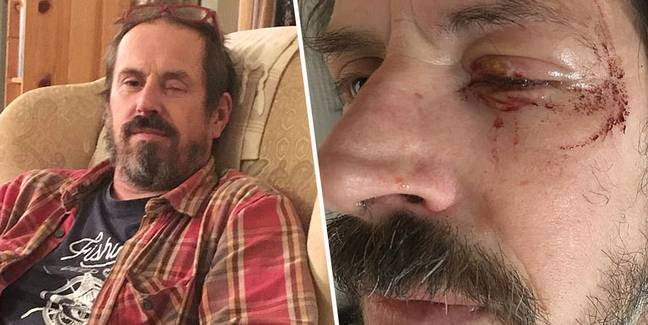 Bomb disposal expert left blind in one eye after being hit by firework