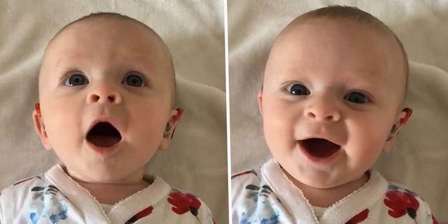 Adorable Baby Born Deaf Giggles With Joy As Parents Turn On New Hearing Aids