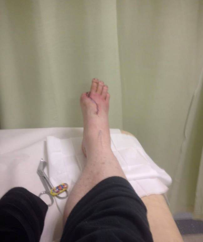 Man with four toes after having big toe sewn in place of thumb