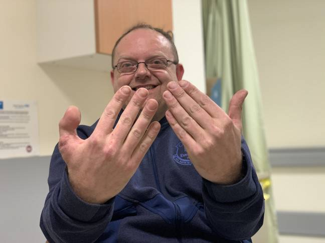 Man grinning after having toe stitched on in place of thumb