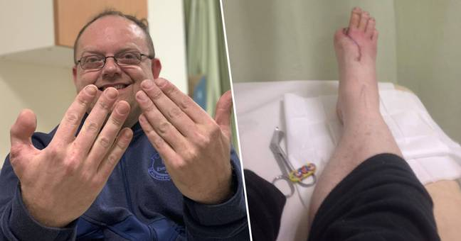 Cobbler Has Toe Stitched To Hand After Losing Thumb In Accident