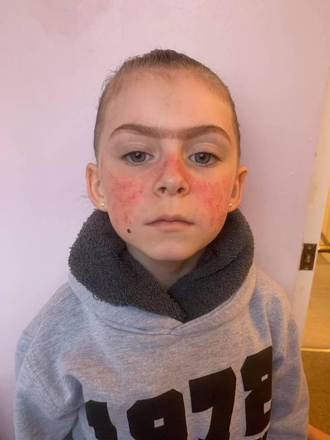 Girl dresses as Miss Trunchball complete with monobrow