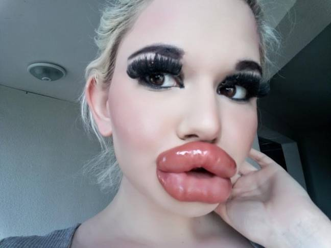 Woman aspiring to have world's biggest lips after undergoing 20th procedure