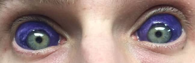 man gets body mods and tattoos eyes