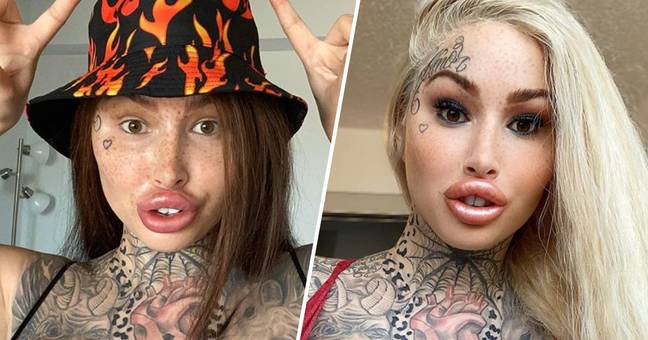 Canadian Instagram Model Mary Magdalene Can No Longer Drink Through Straw After Multiple Surgeries