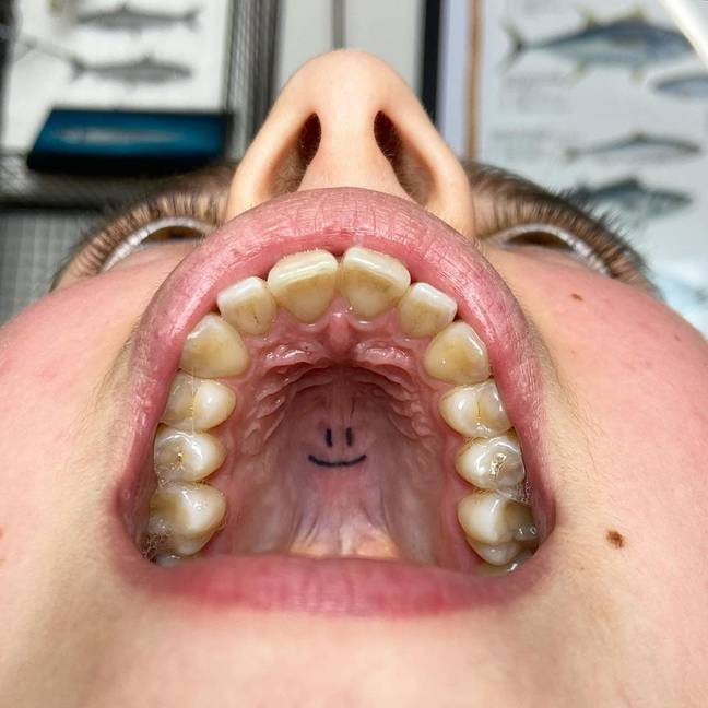 Smiley face tattoo inside someone's mouth
