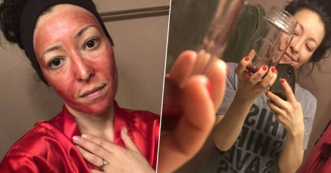 Woman Uses Her Period Blood As Facemask And It Leaves Skin 'Glowing'