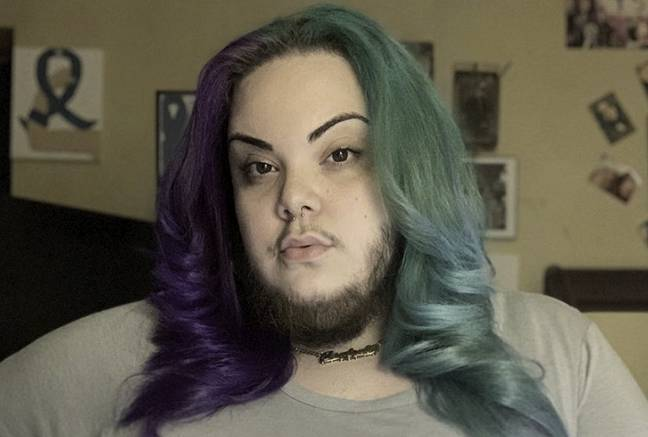 Woman with PCOS showing off beard
