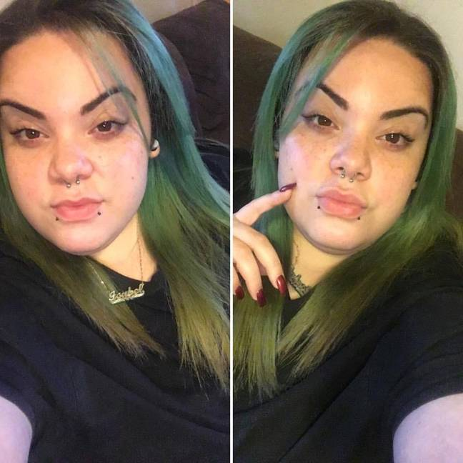 Woman attempted to hide beard caused by PCOS