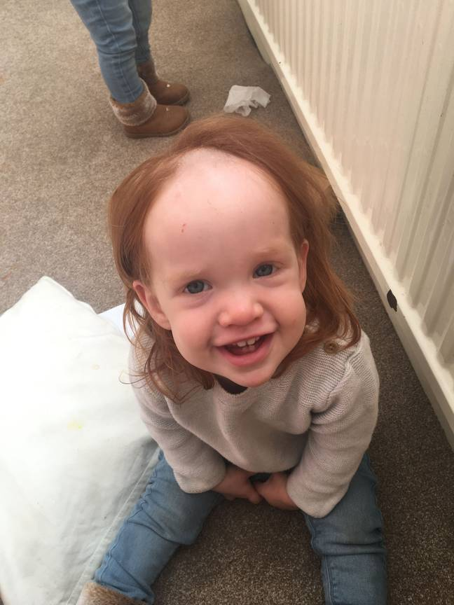 Maisie's bald spot after using hair removal cream