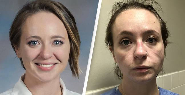 Nurse's Before And After Photos Show Reality Of Months Treating Coronavirus