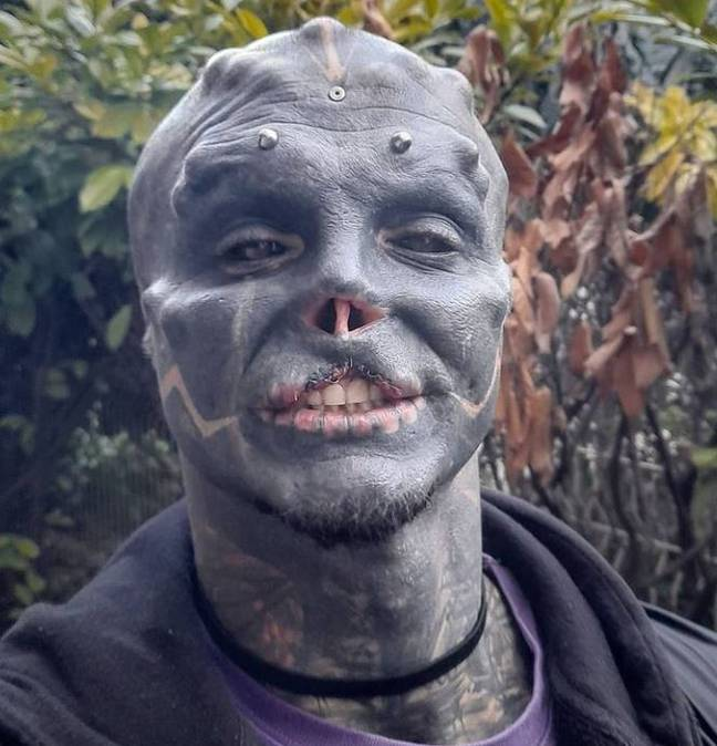 Man has top lip removed to become black alien