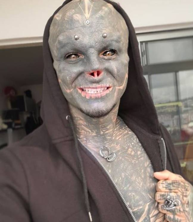 Man has nose removed to become black alien