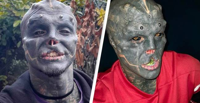 Man Has Nose And Top Lip Removed To Become 'Black Alien'