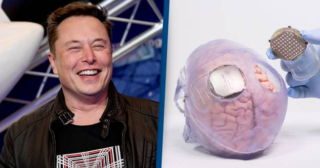 Elon Musk Says Human Trial Of Neuralink Brain Chip Could Begin This Year