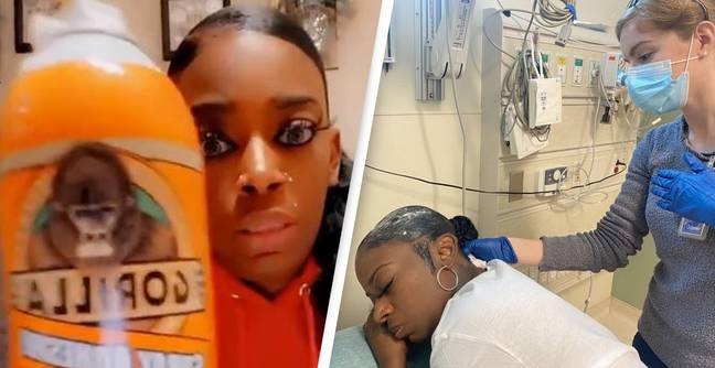 Gorilla Glue Releases First Public Apology After TikToker Used Their Adhesive On Her Hair