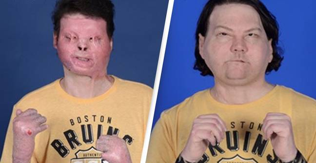 World's First Face And Hands Transplant Gives Man Second Chance At Life