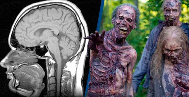 Zombie Gene Brain Cells That Come Alive And Grow After Death Discovered By Researchers