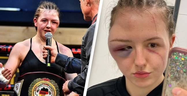 Boxing Match Called Off After Boxer's Face Swells Up Amid Dramatic Clash