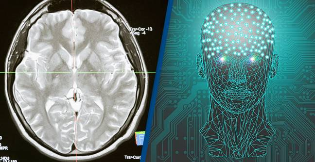 Human Brain Wirelessly Connected To Computer For First Time Ever