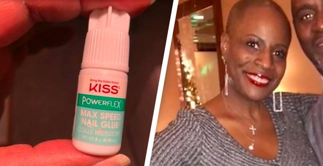 Michigan Woman Glues Her Eyes Shut After Confusing Nail Glue For Eye Drops