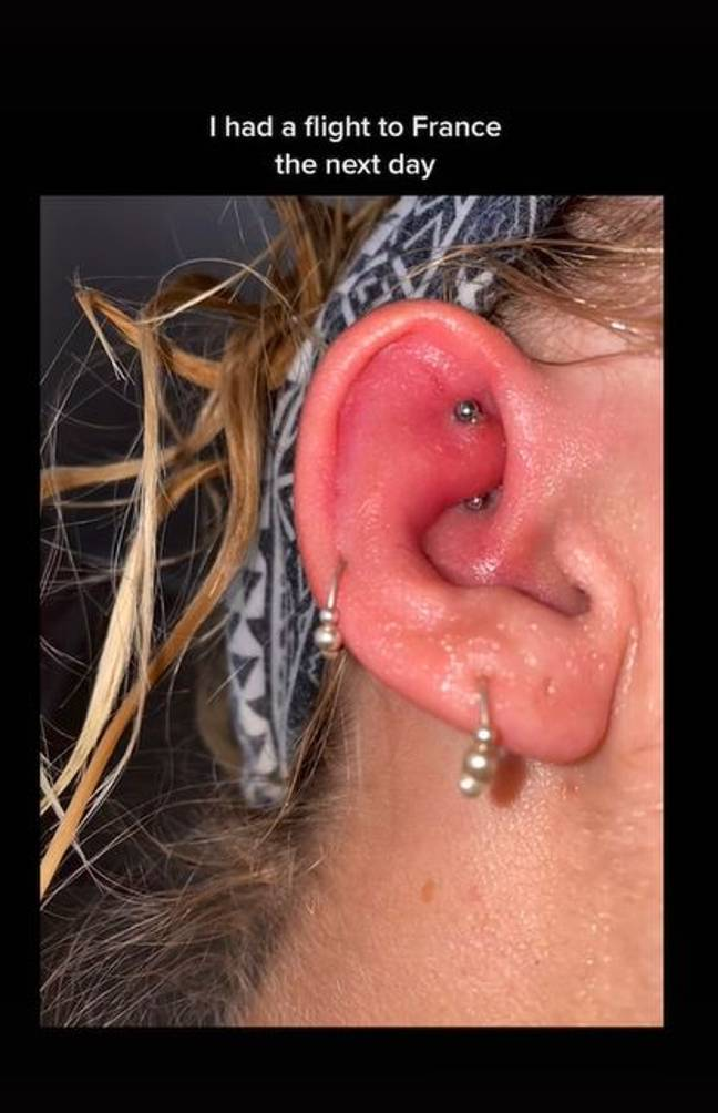 Infected piercing