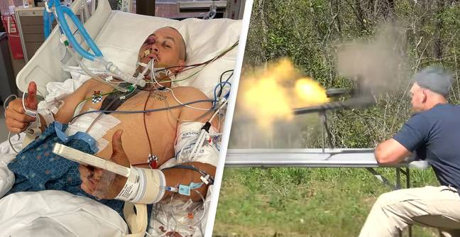 YouTube Weapons Expert Hospitalised After 'Tampered' Gun Explodes In Face