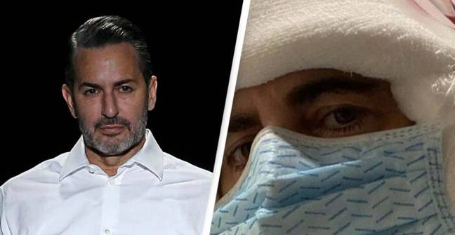 Marc Jacobs Says 'F*** Gravity' As He Reveals He's Had Face Surgery
