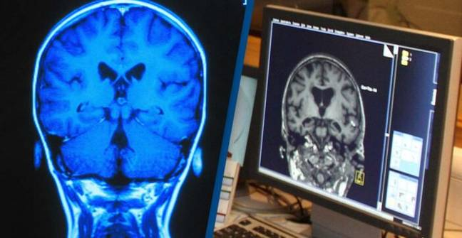 Artificial Intelligence May Be Able To Identify Dementia With Single Scan