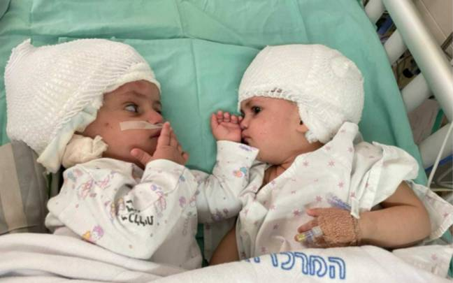 The twins were successfully separated in Israel. (Soroka University Medical Centre)