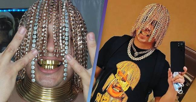 Rapper Dan Sur Has Gold Chains Surgically Implanted In Head In Place Of Hair