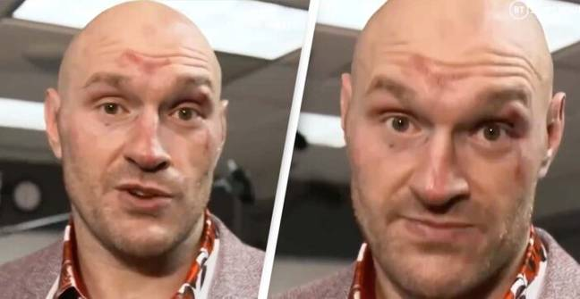 Tyson Fury's Inspiring Message After First Wilder Fight Is Everything We Need On World Mental Health Day