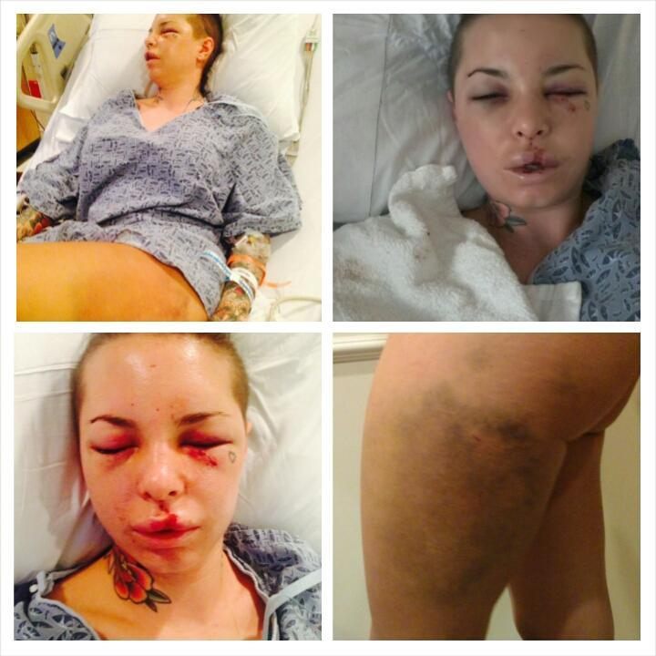 Christy Mack Reveals Shocking Truth About War Machine Beating In Statement BuyVUx3IUAA0 wt 1