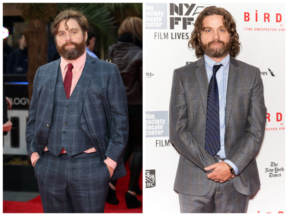 Zach Galifianakis Has Lost Some Serious Weight 131