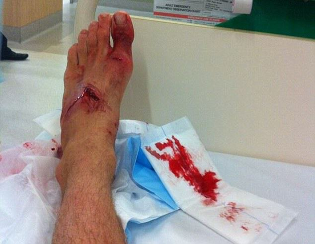 Lucky Lad Survives Shark Attack After Mistaking Shark For Rock foot1