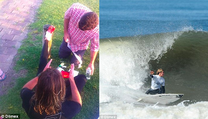 Lucky Lad Survives Shark Attack After Mistaking Shark For Rock foot5