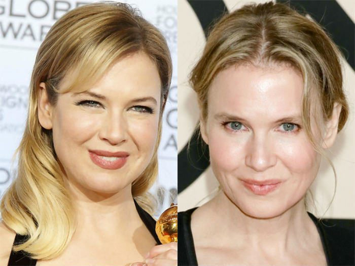 A UNILAD Look Back At 2014 Renee Zellweger Plastic Surgery Before After Photos
