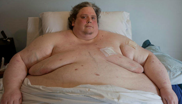 Keith Martin The Worlds Fattest Man Dies At 44 martin fat web thumb