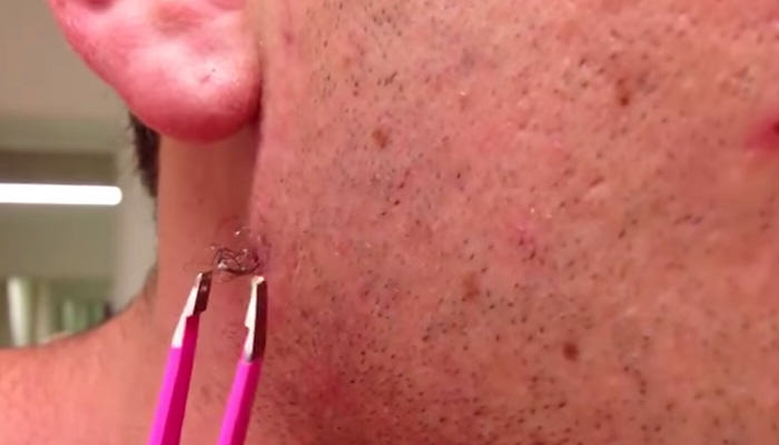 This Lad Uses Tweezers On A Year Old Spot, Look What He Finds tweezerweb