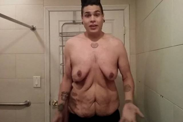 Man Loses 270lbs, Makes Video Showing Off Excess Skin Left Over MATT 640x426