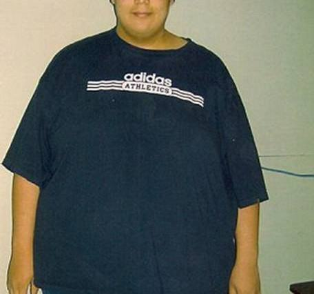 Man Loses 270lbs, Makes Video Showing Off Excess Skin Left Over MATT1 456x426