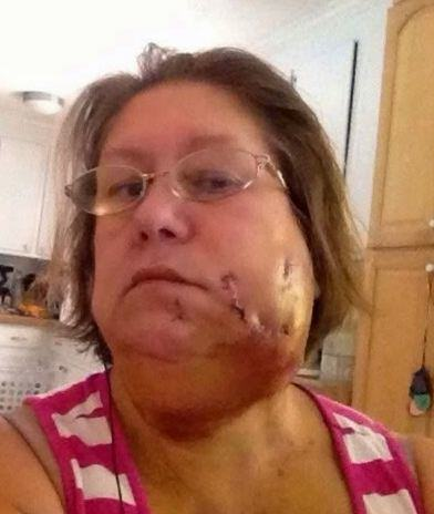 Pitbull Attacks Grandmother As She Does Ice Bucket Challenge bitey