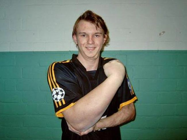 This Guy Was Born With His Arm 33% Bigger Than Normal, And Uses It To Become World Champion Arm Wrestler ertyu7i