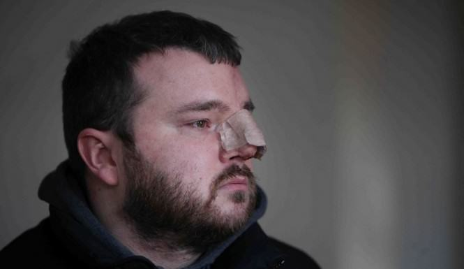 This Guy Lost Half His Nose On A Night Out But Has No Idea How guylostnose